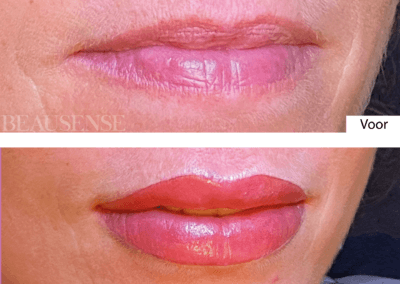 Lippen PMU